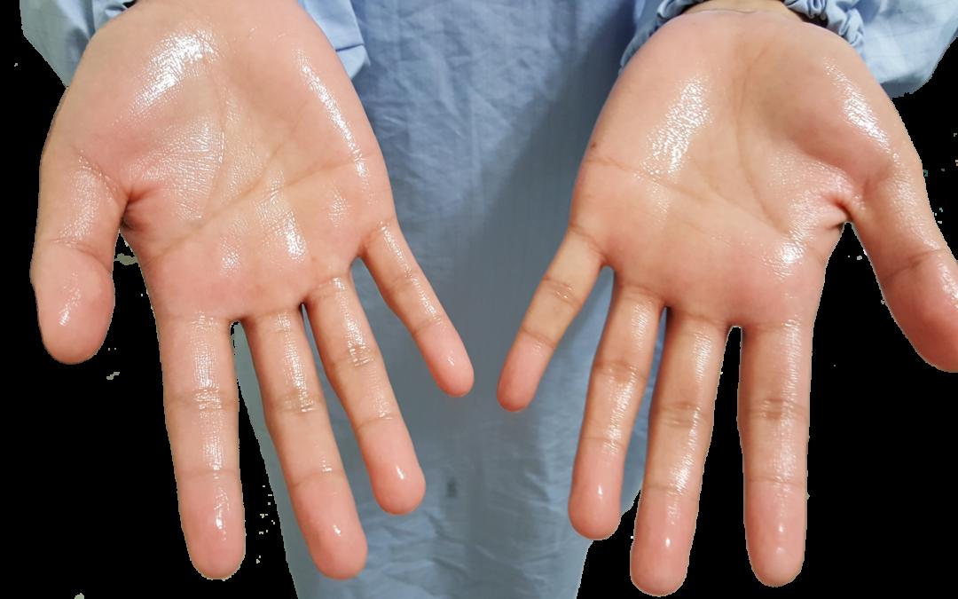 為什麼你會有手汗症?針對病因治療才能有效根治